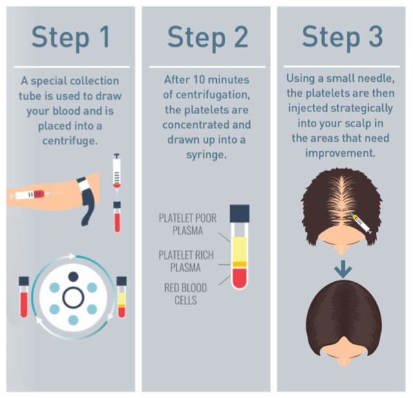 Hair Loss Treatment Step by Step Process